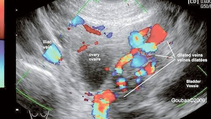 Lire une échographie abdominale