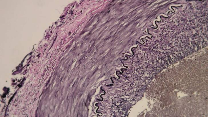arteres-calcifiees-soignez-vous.com