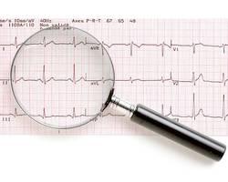 L'electrocardiogramme