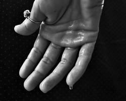 Automassage : Transpiration excessive des mains et des pieds