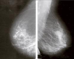 Lire sa mammographie