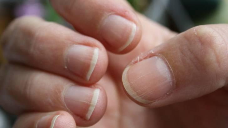ongles-stries-soignez-vous.com