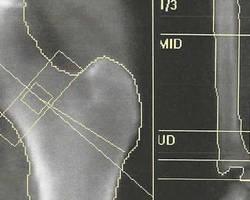 Ostéodensitométrie du col du fémur