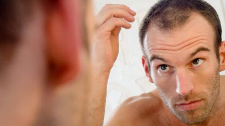 perte-de-cheveux-soignez-vous.com