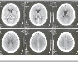 Le scanner cérébral, comme lire les examens