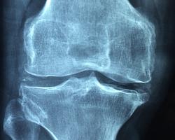 Témoignage : Adieu arthrose des genoux, lombaires, cervicales...
