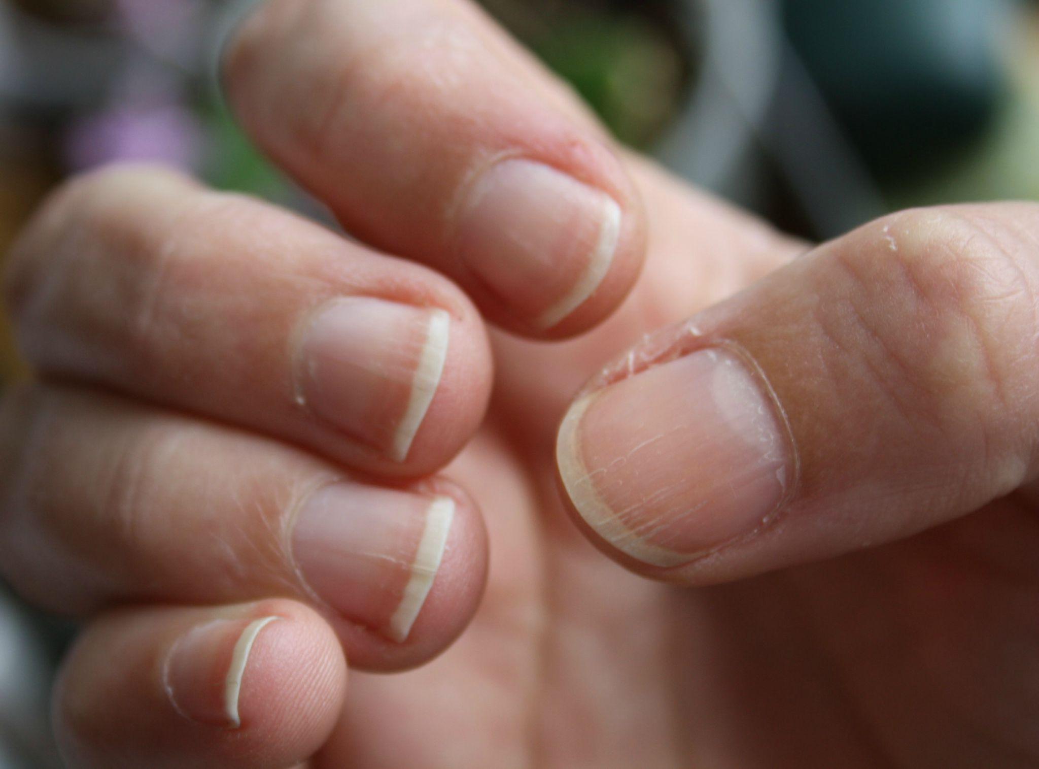 Question ongles stri s traitements soignez vous - Ongle coince dans une porte que faire ...